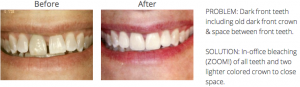 Philadelphia teeth whitening